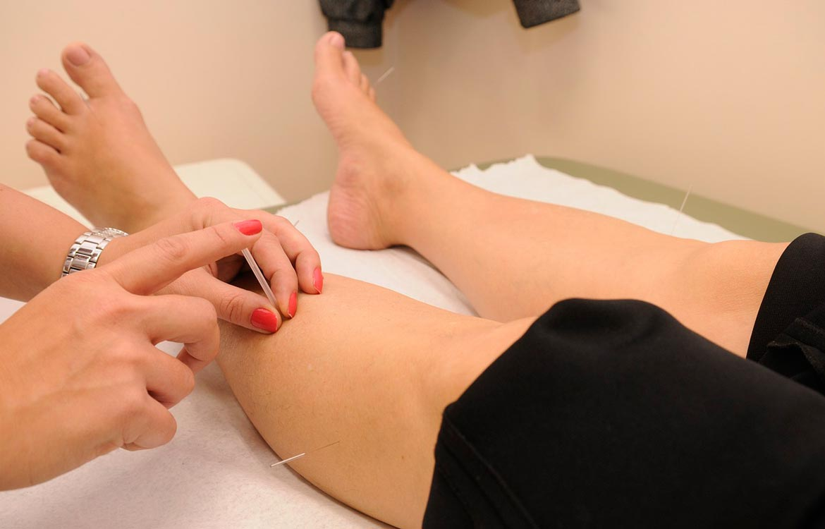 Physiotherapy acupuncture treatment